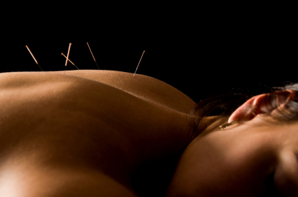 back_pain_acupuncture_dr_anne_hermann_tampa