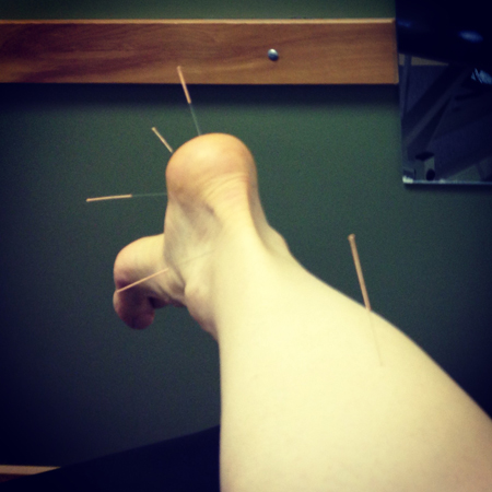 160425acupuncture